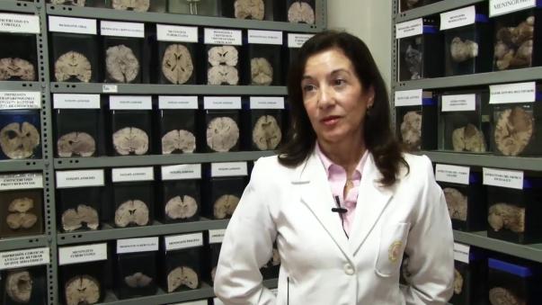 El Museo del Cerebro alberga aproximadamente 3000 piezas conservadas en estado natural.