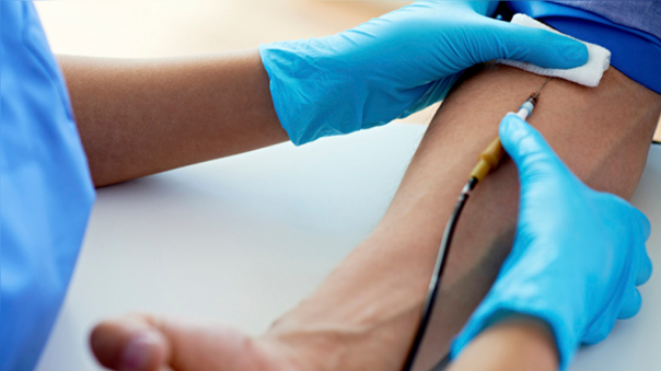 La sangre puede almacenarse por varias semanas sin perder sus propiedades.