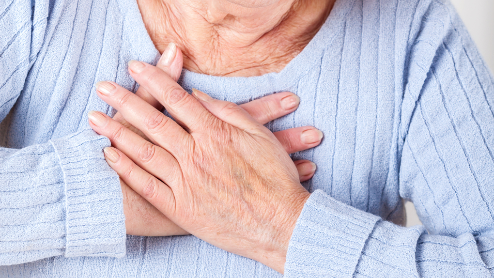 El síndrome del corazón roto se relaciona mucho al estrés emocional.
