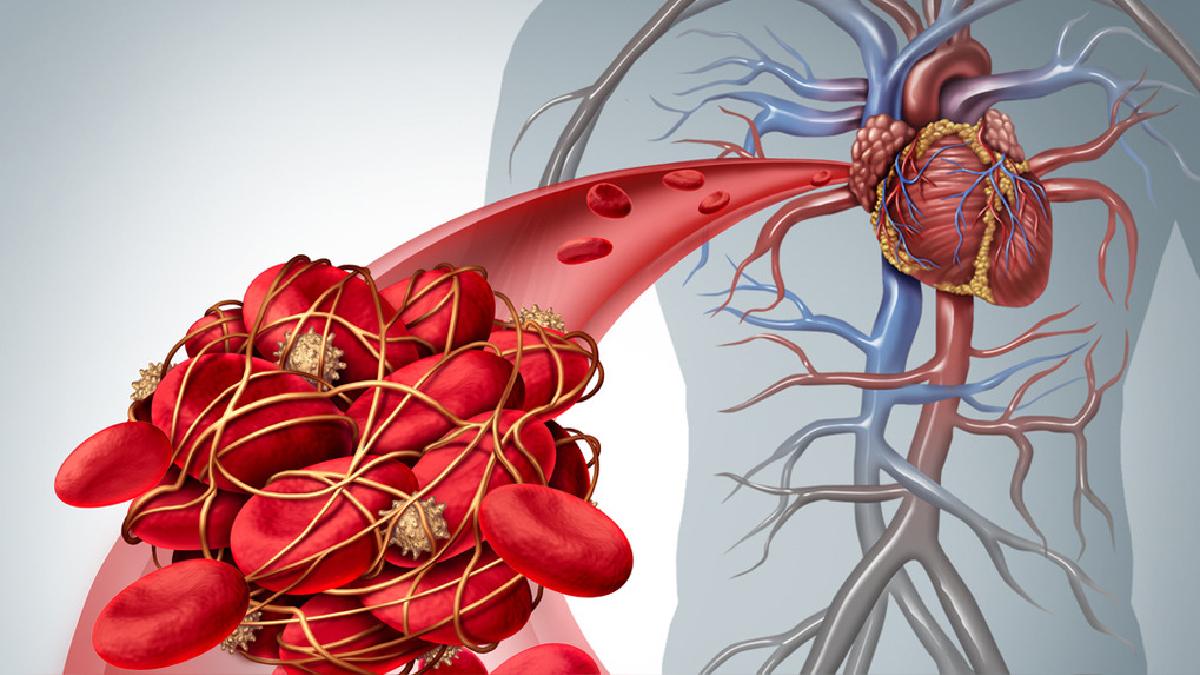 La presión arterial es el incremento constante de la presión sanguínea en las arterias.