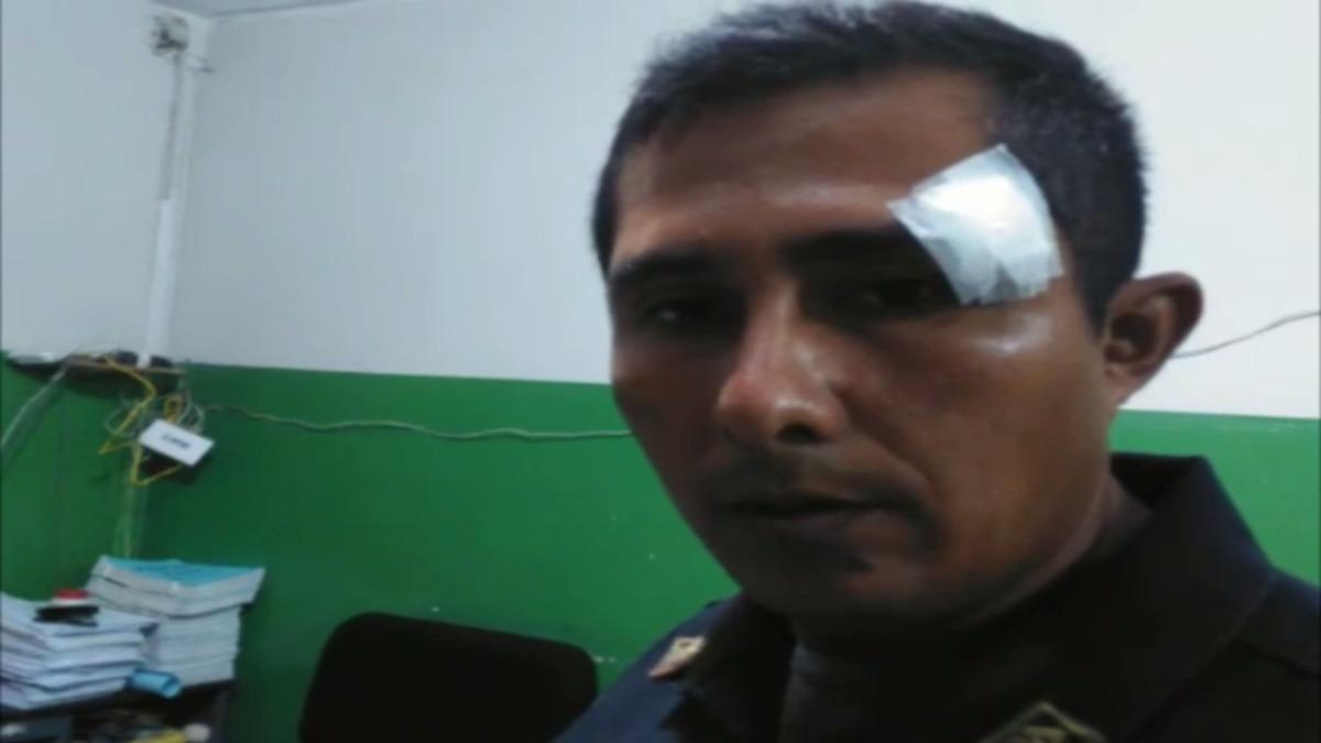 Suboficial Jemi Vera fue el más afectado y denunció la agresión en la comisaría de Campodónico.
