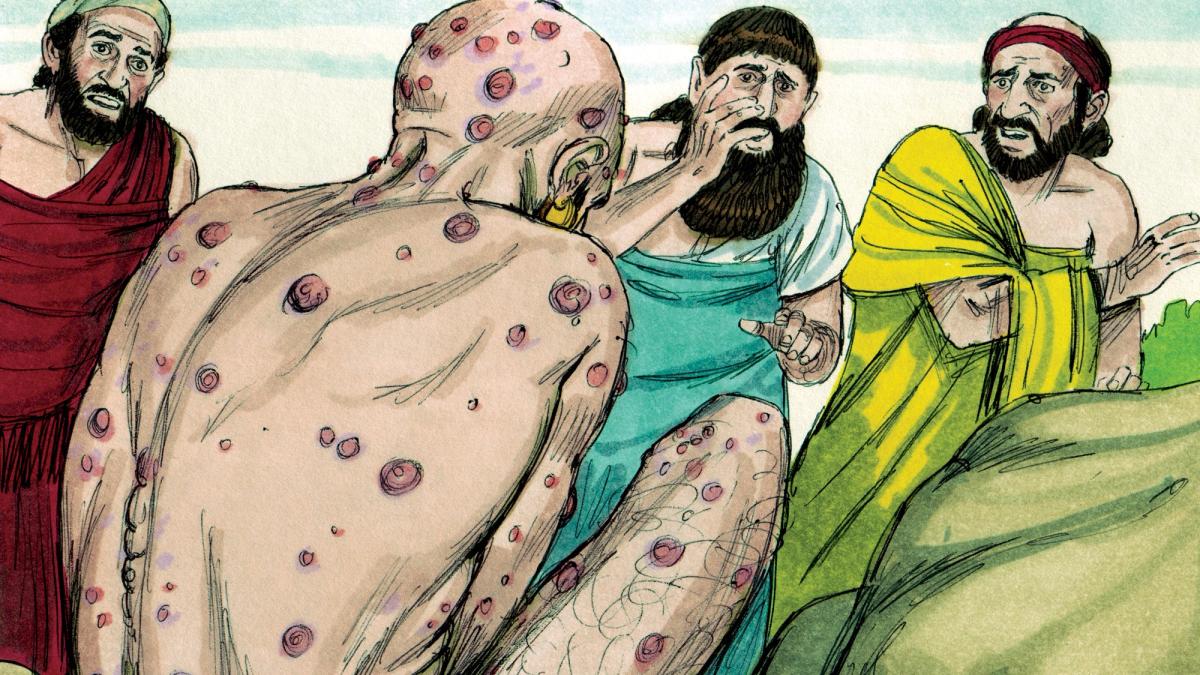 La lepra es una de las enfermedades más comentadas en la Biblia. Si bien en la Edad Media aún era causa de muerte; en el siglo XXI, la lepra es una enfermedad infecciosa que tiene cura.