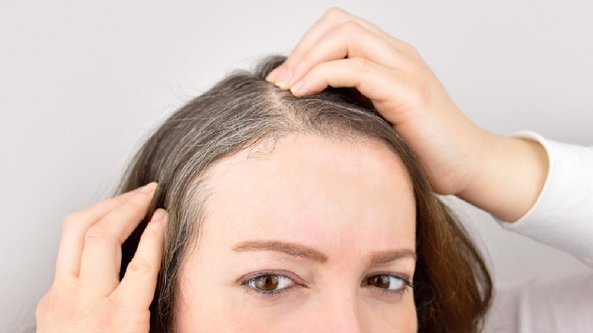 Las canas son un proceso de envejecimiento del cabello y de pérdida de pigmentación (melanina). Además de la edad influyen otros factores.