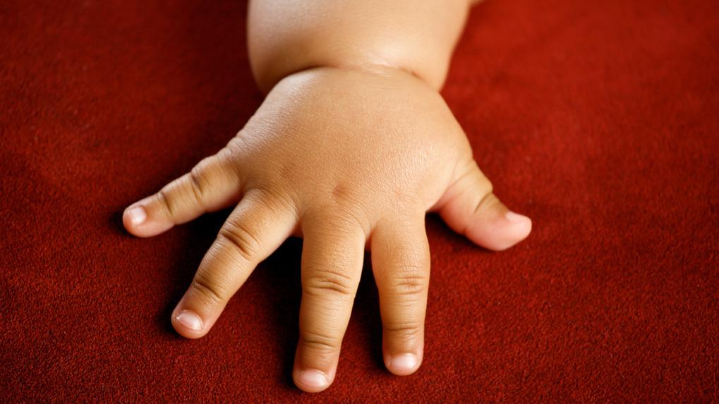 La malnutrición es causada tanto por falta de alimentos como por el consumo de comida 'chatarra'.