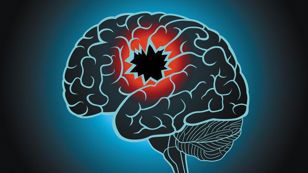 El daño más serio se da cuando afecta la corteza frontal, indica el neurólogo Oswaldo Cachay.