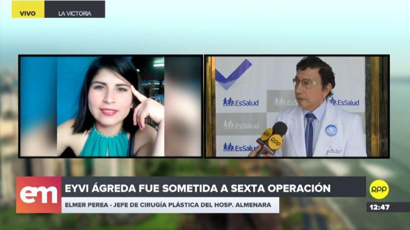 Eyvi Liset Ágreda sigue en Unidad de Cuidados Intensivos del Hospital Almenara.