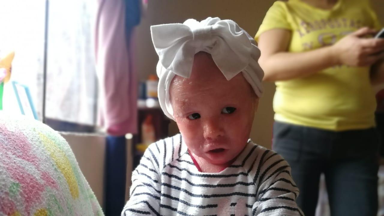 Todos podemos unirnos para apoyar a esta pequeña que padece ictiosis arlequín, el único caso en el Perú.