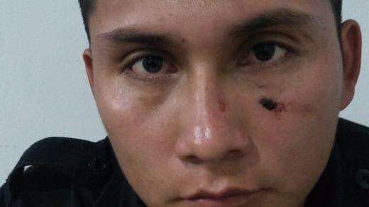 El suboficial Luis Gonzales resultó con una herida en el rostro producto del forcejeo.