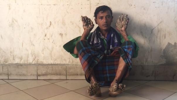 El 'hombre árbol' vuelve al hospital sin esperanzas de ser curado en su país.