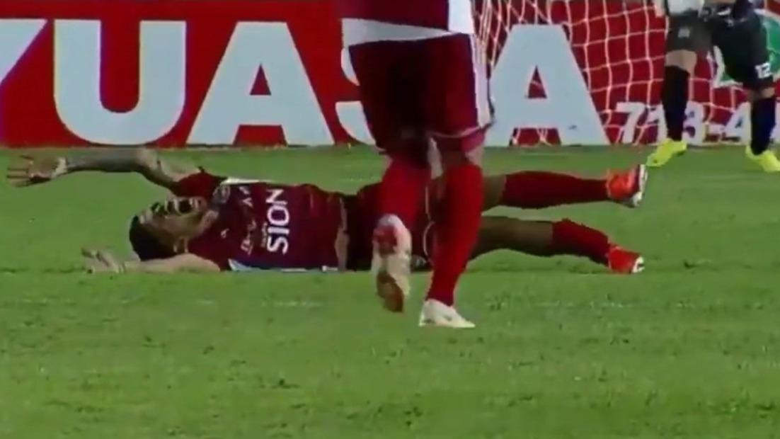 Mateo Zoch terminó lesionado tras una falta Urapuca