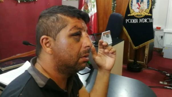 Leonardo José Esparragoza Ramos viajó desde Venezuela a Ecuador y luego llegó al Perú para buscar a su expareja.