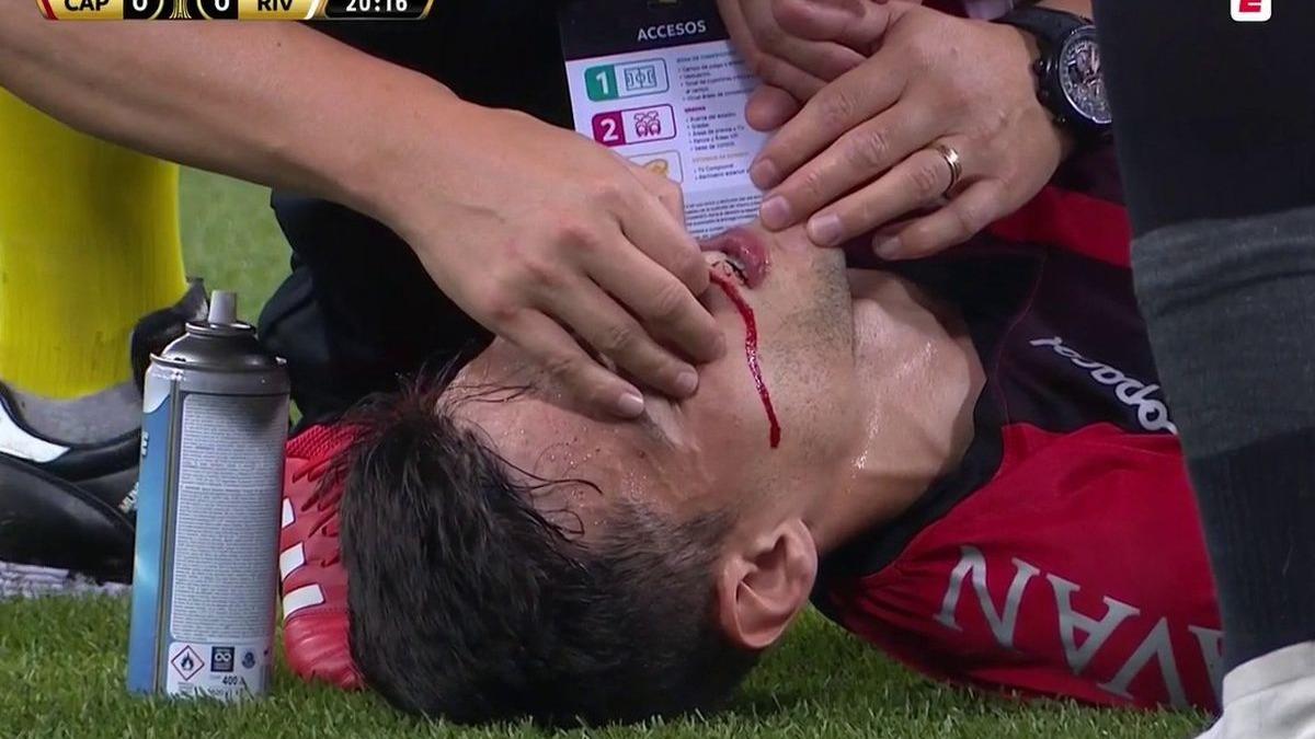 Por esta acción de Cittadini tuvo que ser detenido en River vs. Paranaense.