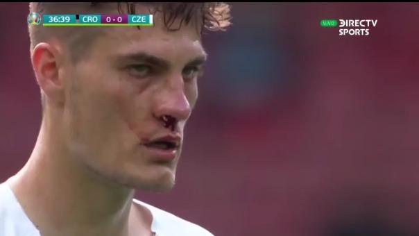 Patrik Schick anotó de penal.