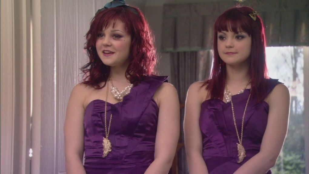 """Kathryn Prescott, along with her twin Megan, played Emily and Katie in """"Skins."""""""